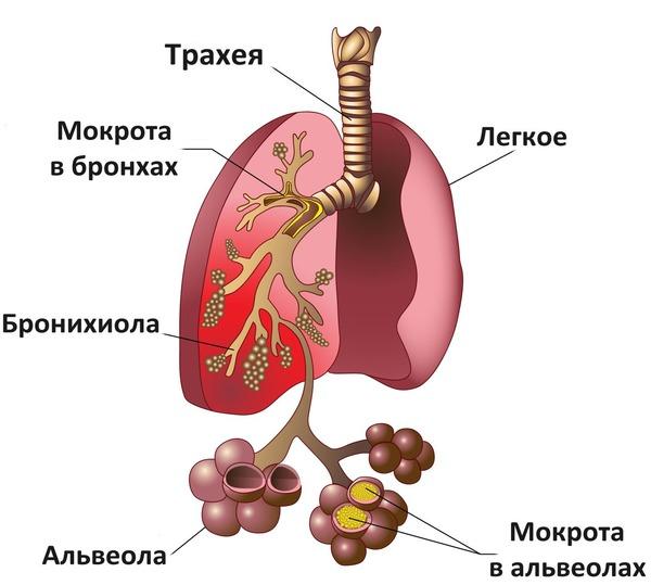Клебсиеллез может быть причиной пневмонии