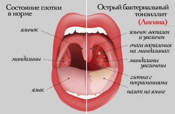 Состояние глотки в норме и при ангине