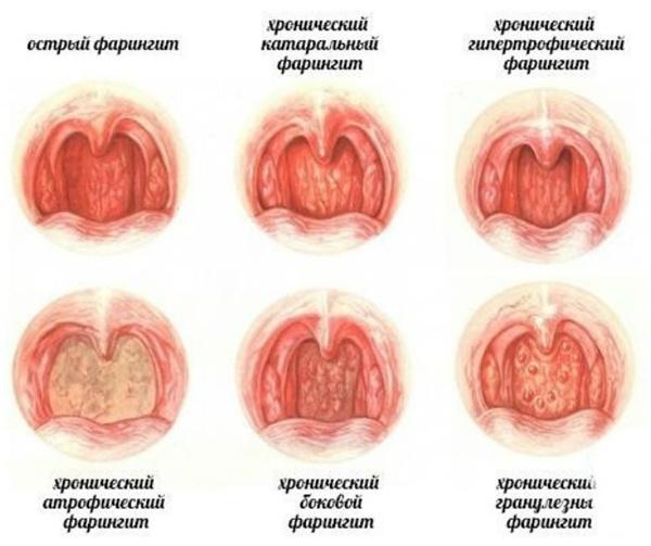 Поражения ротовой полости при фарингите