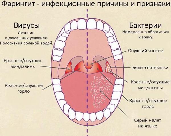 Фарингит вирусной и бактериальной природы