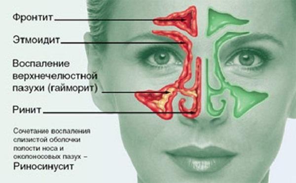 Воспалительные процессы в носу