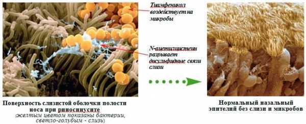Действие антибиотика на слизистую оболочку носа
