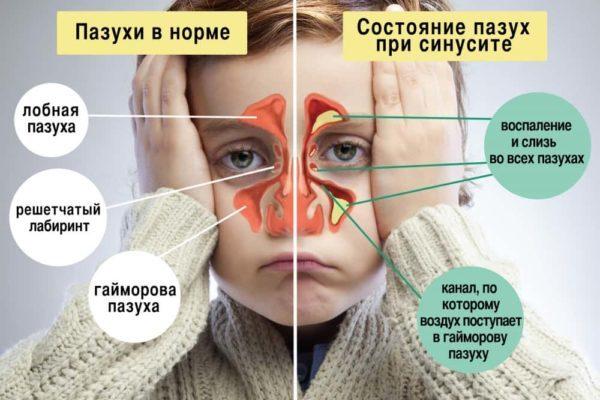 Стафилококковый синусит