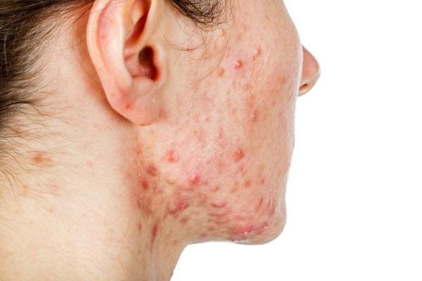 Поражение кожи лица стафилококком