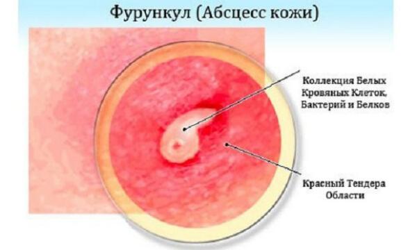 Стафилококковый абсцесс