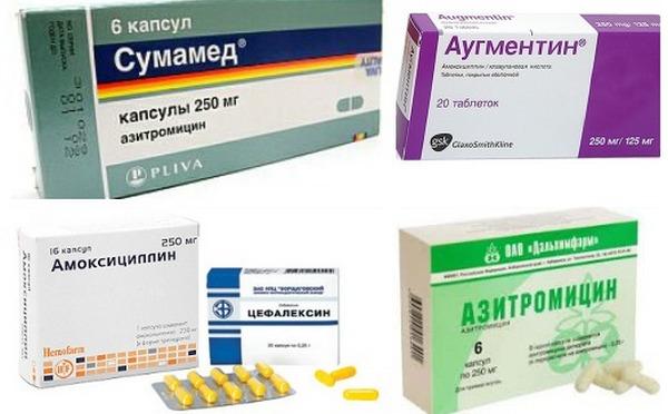 Антибиотики от стрептококка