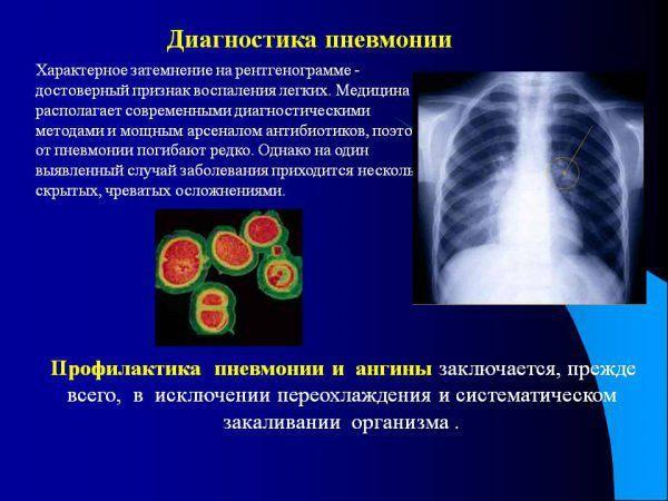 Диагностика стафилококковой пневмонии