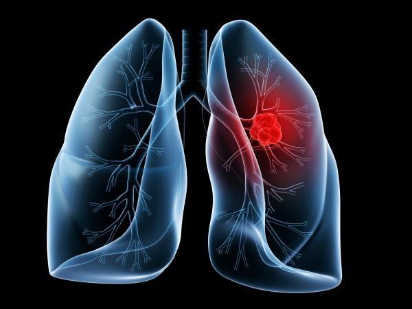 Основные особенности стафилококковой пневмонии