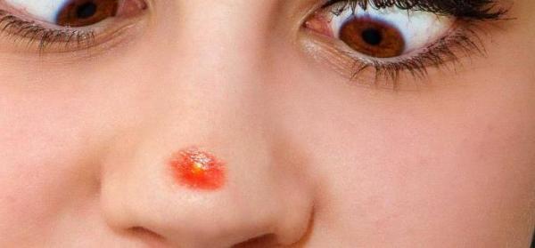 В каких болезнях повинен стафилококк?