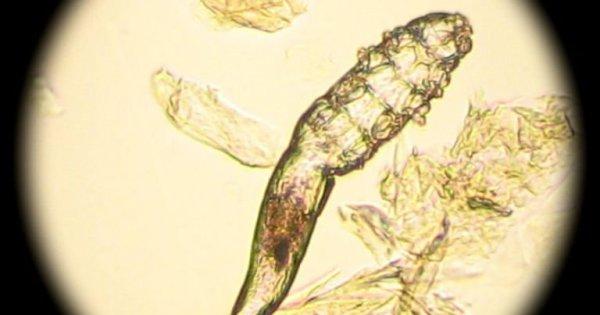 Демодекс: вид под микроскопом