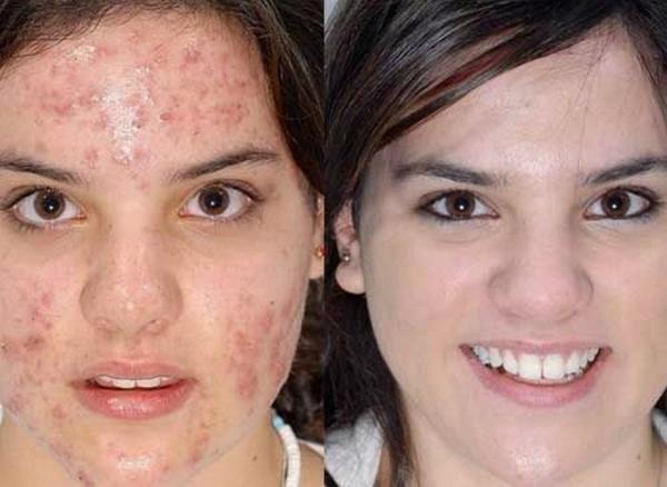 Результат успешного лечения демодекоза лица