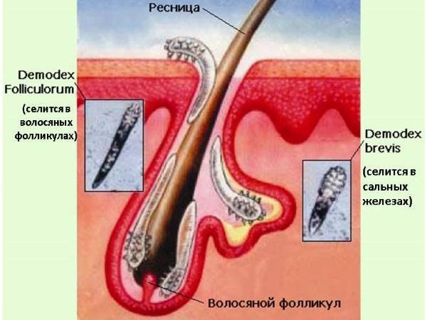 Разновидности клеща демодекса