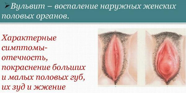 Хронический трихомонадный вульвит