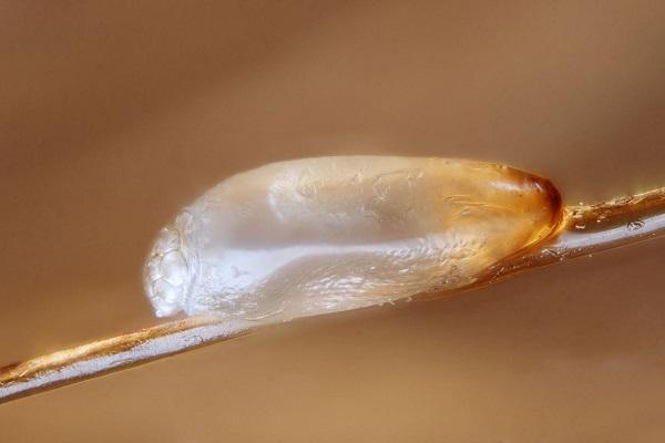 Увеличенная гнида головной вши