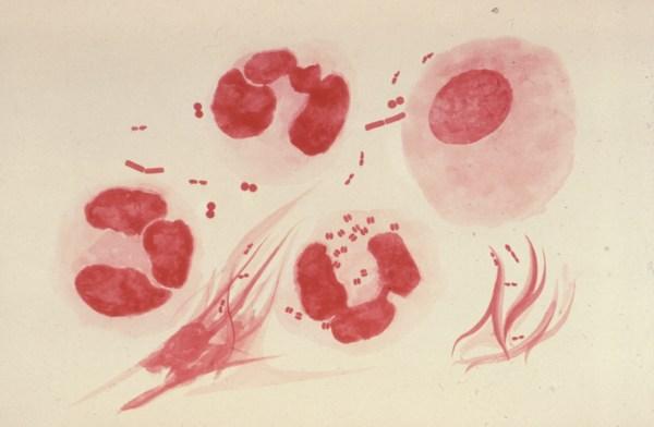 Внеклеточные диплококки у мужчин и женщин