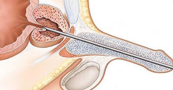 Все, что нужно знать о диплококках, обнаруженных у мужчины в мазке