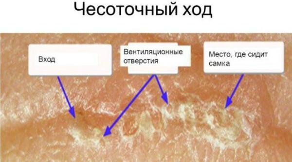 Воздействие мазью при лечении чесотки
