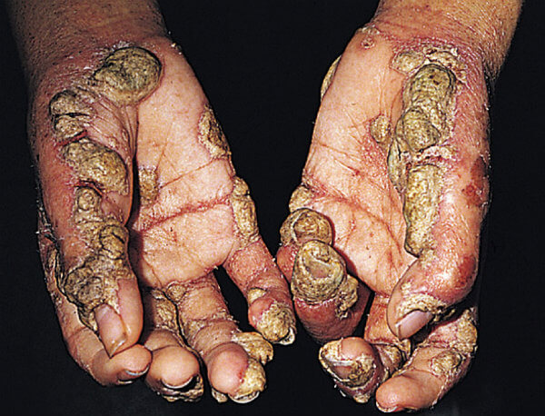 Руки пациента с норвежской чесоткой