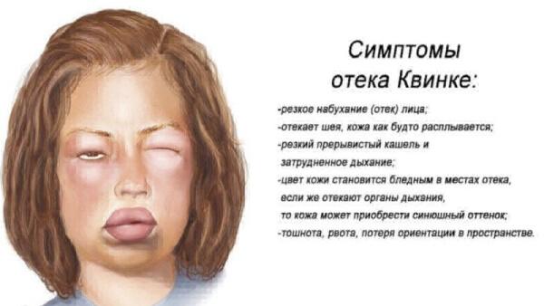 Осложнения флеботодермии
