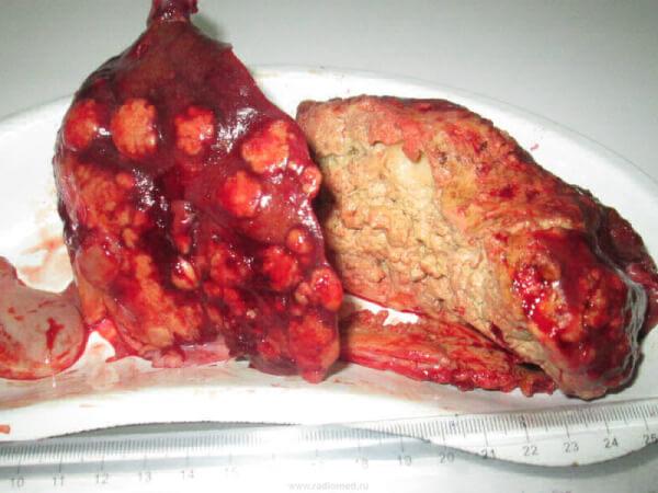 Печень, пораженная альвеококом