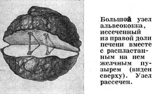 Альвеококковая киста