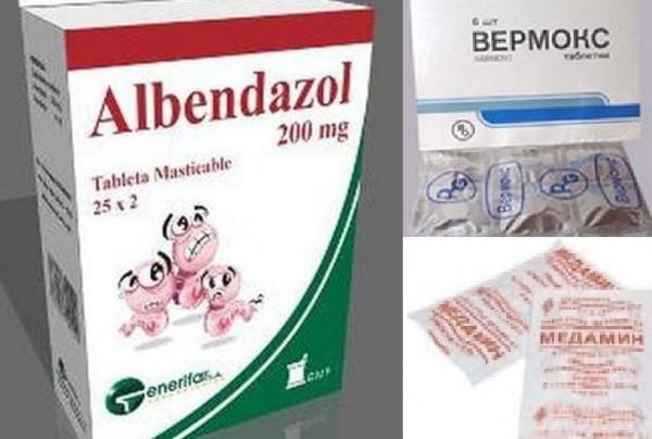 Лечение висцерального токсокароза