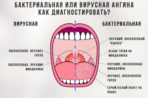 Бактериальная или вирусная ангина?