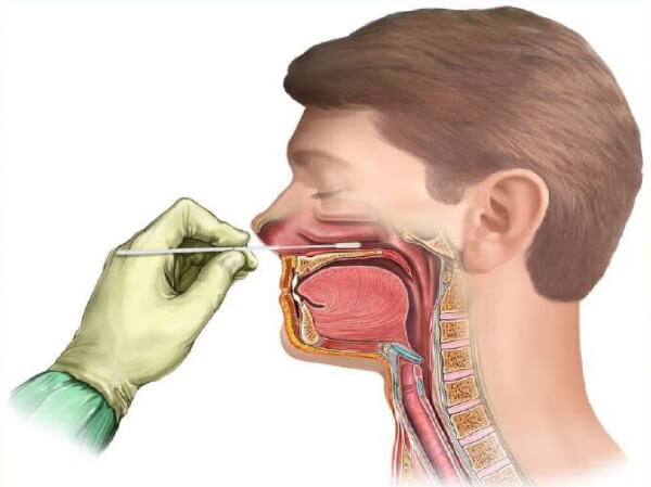 Диагностика стрептококка в носу
