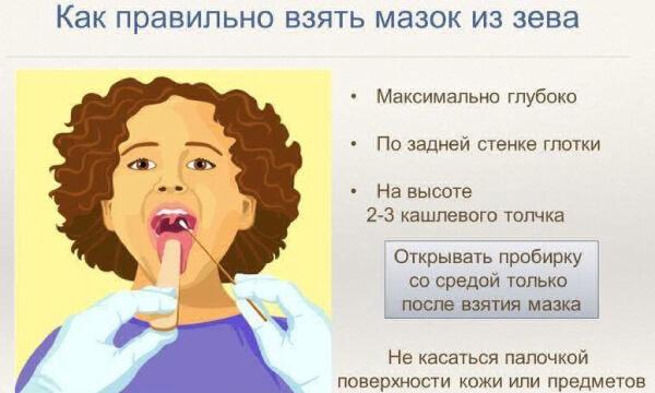 Диагностика бактериальной флоры в горле