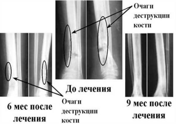 Стрептококковая инфекция костей