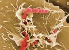 Почему кожа не справляется со стрептококком?