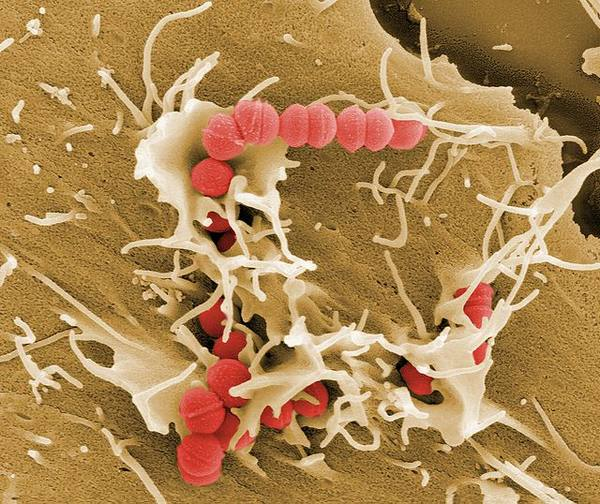 Стрептококковое поражение кожи