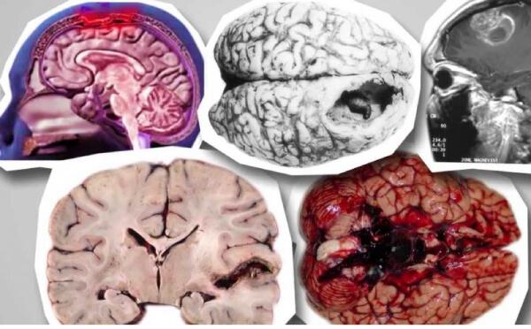 Неглерия фоулера: амеба, способная съесть мозг