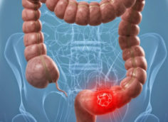 Амебиаз кишечника и внекишечные формы заболевания