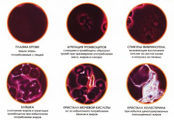 Результат гемосканирования