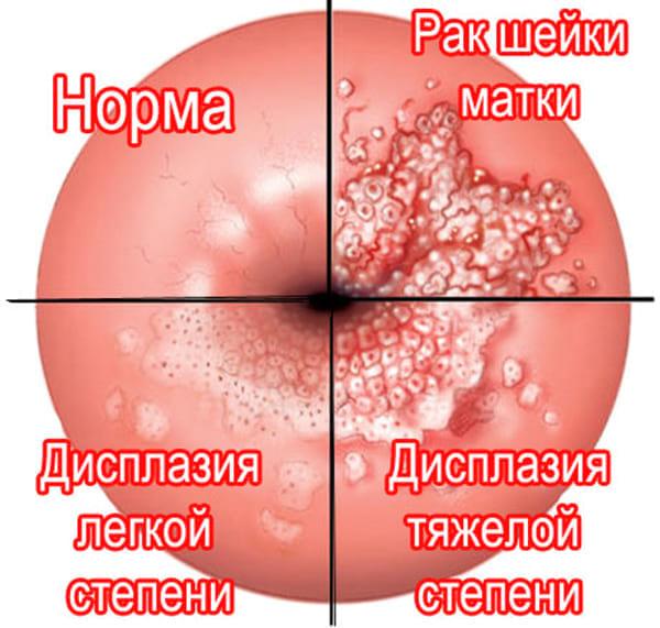 Опасность хламидиоза