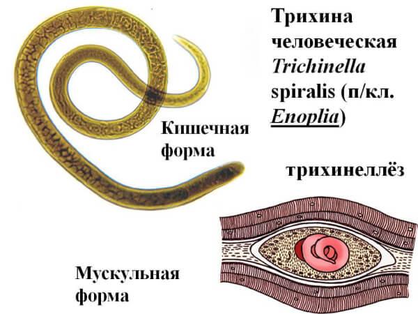 Трихинеллез у людей