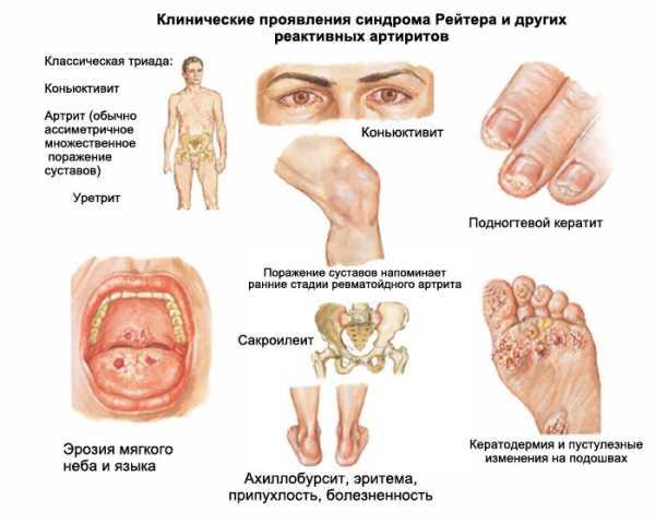 Осложнения хламидиоза