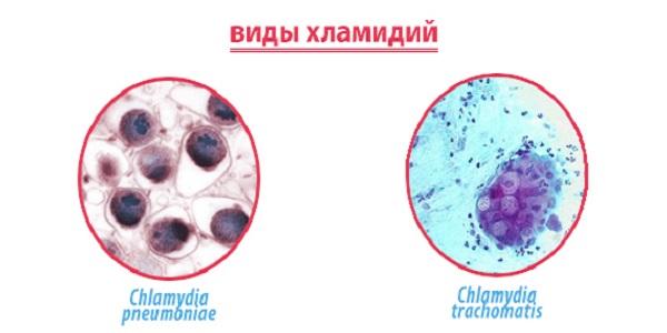 Как распознать респираторный хламидиоз?