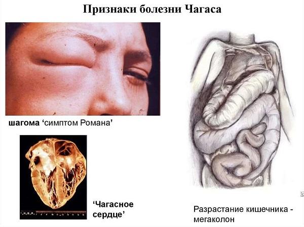 Признаки болезни Шагаса